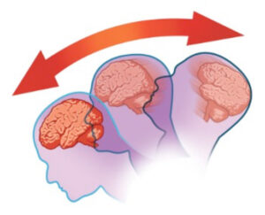 Traumatic brain lesion. Complications