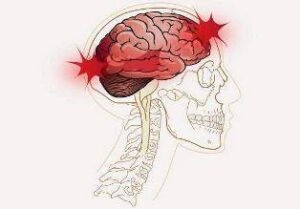 Craniocerebral Injuries